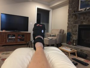Working Out After Foot Surgery
